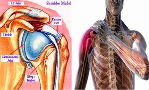 cum să tratezi inflamația tendoanelor în articulația genunchiului