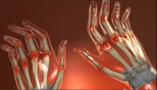 boala afectează articulațiile