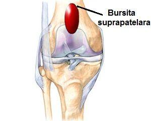 tratamentul bursitei infrapatellare a genunchiului)