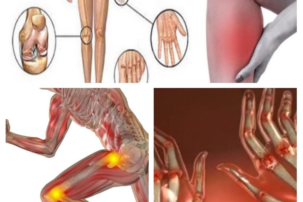 agent antiinflamator pentru articulațiile mâinilor)