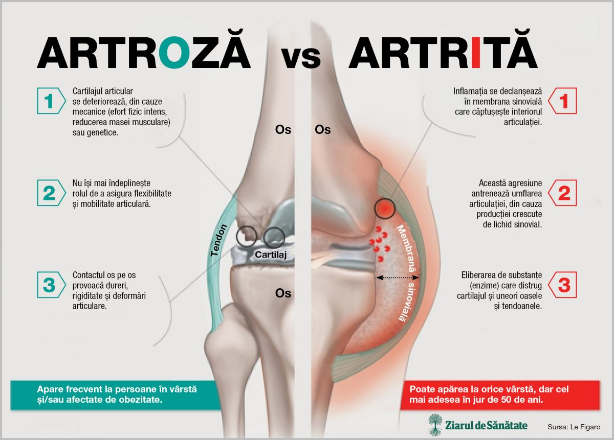 artroza sau artrita tratamentului articulației genunchiului)