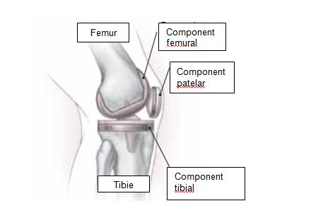 durere în articulațiile picioarelor după operație)