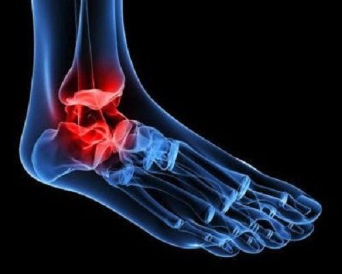 boala articulației gleznei artroza semnelor de tratament ale articulației genunchiului
