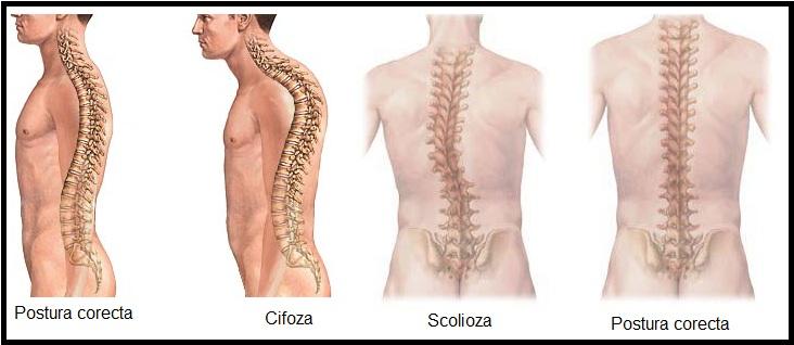 boli ale articulațiilor și ale coloanei vertebrale gonartroza tratamentului la frig la genunchi