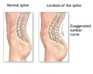boli ale coloanei vertebrale și articulațiilor conovalului)
