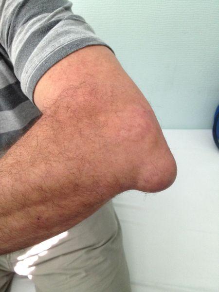 Crucearosies1 Tratamentul durerii de umăr dimexidum Durere care afectează mai multe articulații