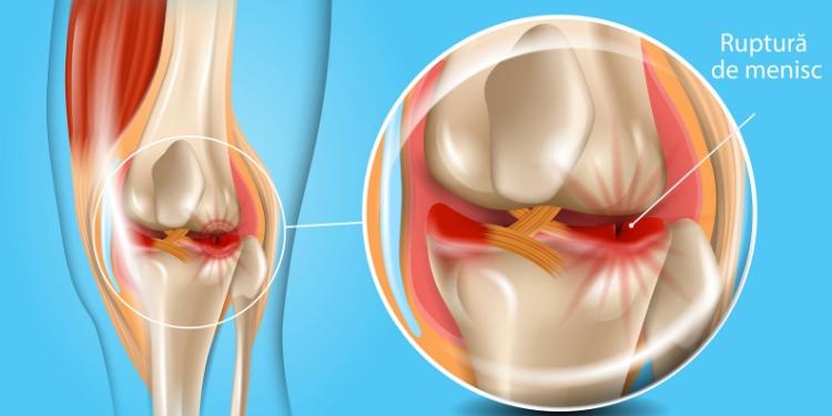 Ruptura de menisc: cauze, simptome, tratament, Leziune la genunchi ghemuit