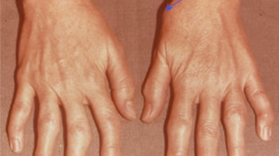 dureri articulare deget mare