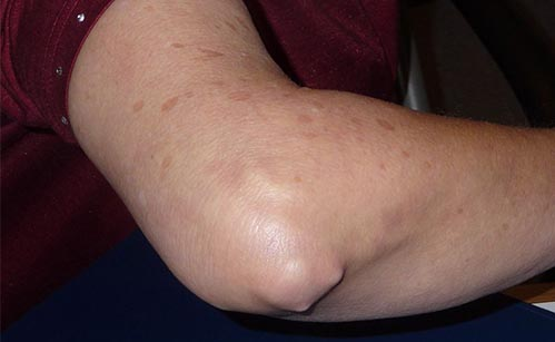 artrita cronică a cotului)