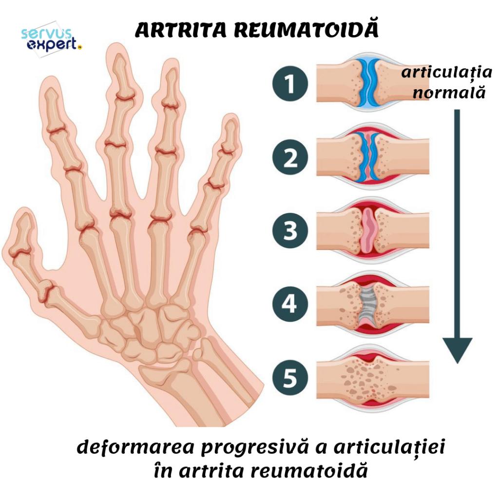 artrita reumatoidă a articulației degetului)