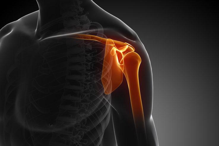 boala articulațiilor umărului și tratamentul