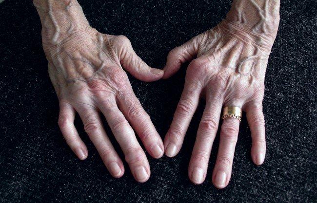 cum arată articulațiile cu artrita)