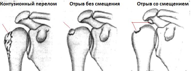 leziuni la nivelul umerilor toamna)