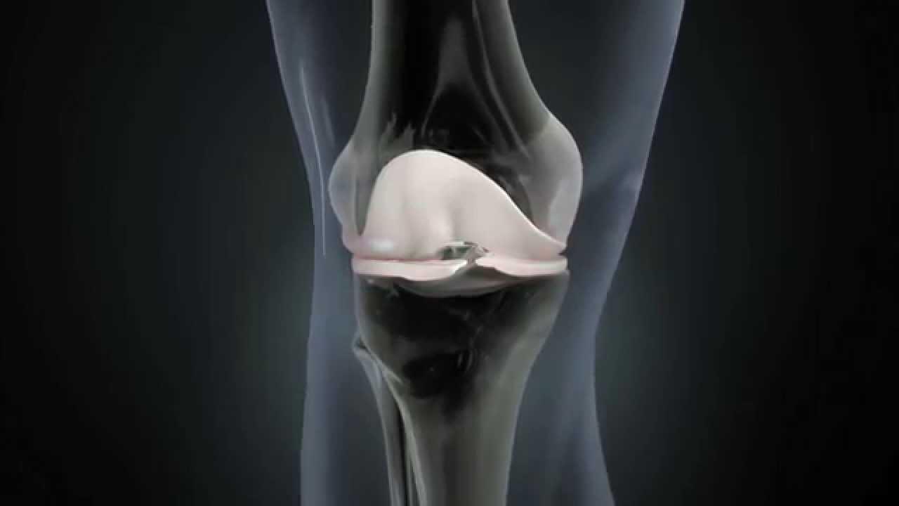 Ce este artroza artroso a genunchiului)