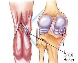 inflamația genunchiului este)