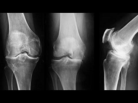 artroza deformantă a genunchiului de gradul doi)