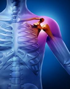 Clavicula iese din articulație fără durere