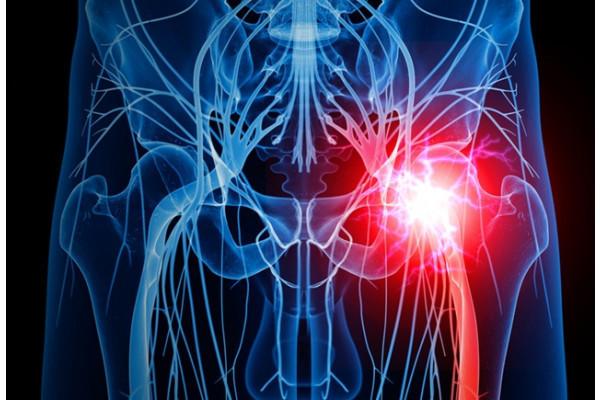 coxartroza articulației șoldului cum să amelioreze durerea)