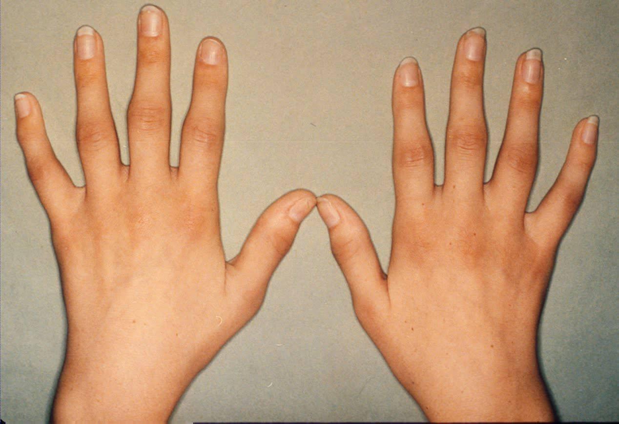 dureri articulare pelvine