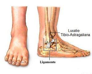cum se tratează ligamentele gleznei creșterea pe tratamentul articulației cotului