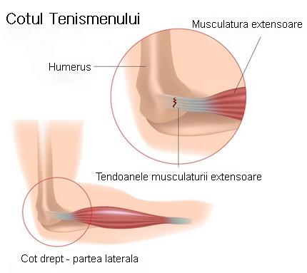 Epicondilita laterală (Cotul tenismenului) - cauze, diagnostic, tratament