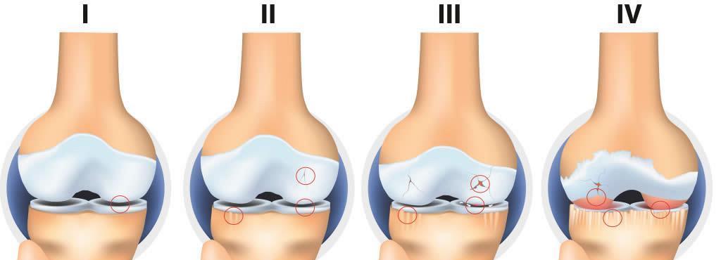Tratamentul artrozei genunchiului cu exacerbare