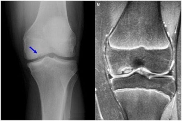 gradele radiologice ale artrozei genunchiului