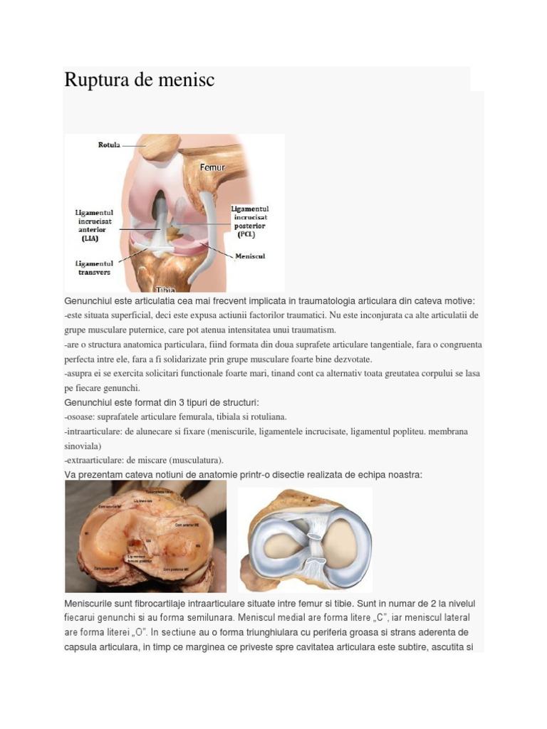 Dictionar Medical diartroza