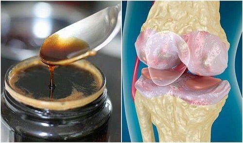 tratament cu gelatină cu artroză la șold