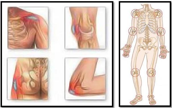 de ce durerea în articulația șoldului este periculoasă)