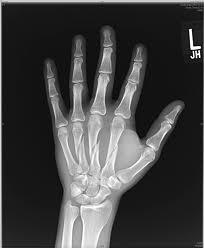 deplasarea unei fracturi de încheietura mâinii)