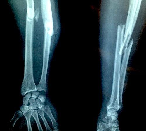 Fractură de încheietura mâinii cu tratament de deplasare