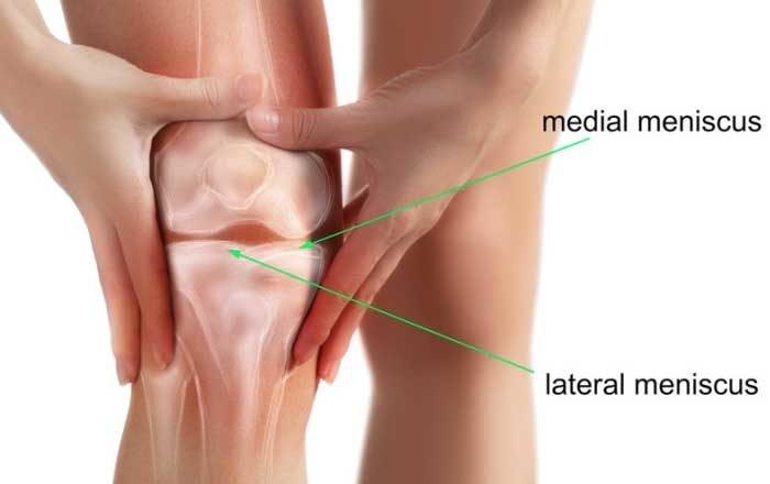 deteriorarea meniscului medial al genunchiului