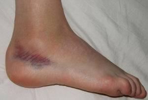 artroza articulației genunchiului 3 grade dureri articulare ursosane