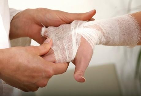 după ce rănile mâinilor reci se rănesc