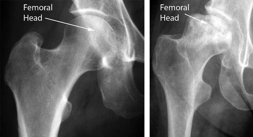 durere din necroza articulației șoldului)