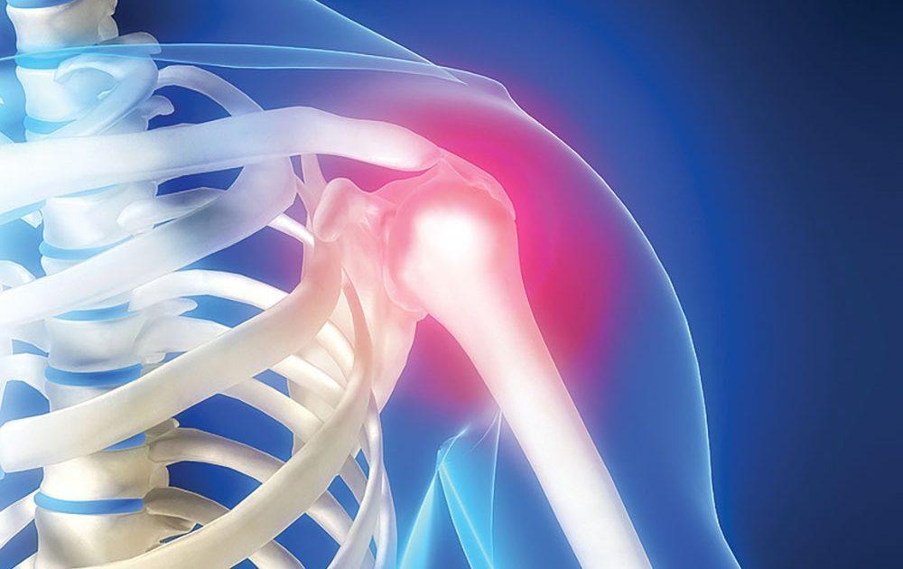 gimnastică pentru tratamentul artrozei umărului stavoza durerii articulare