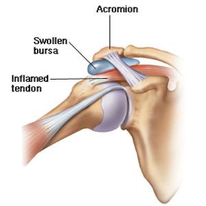 durere în articulația umărului cu un suspin