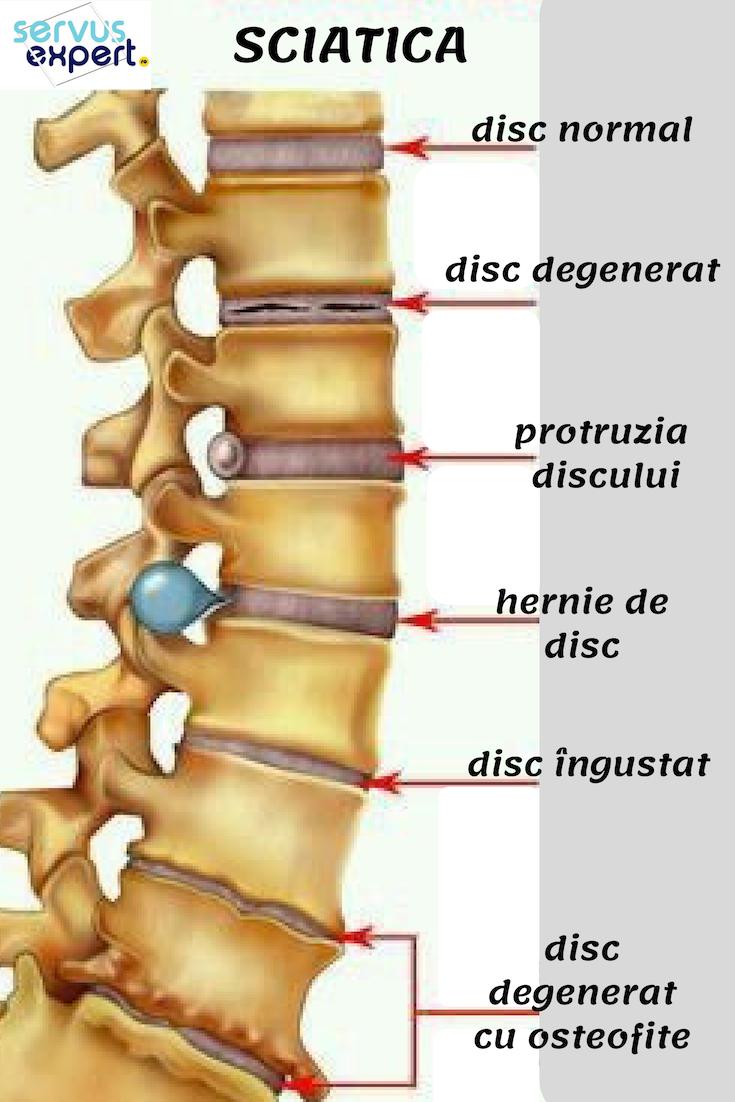 durere în articulațiile membrului superior)