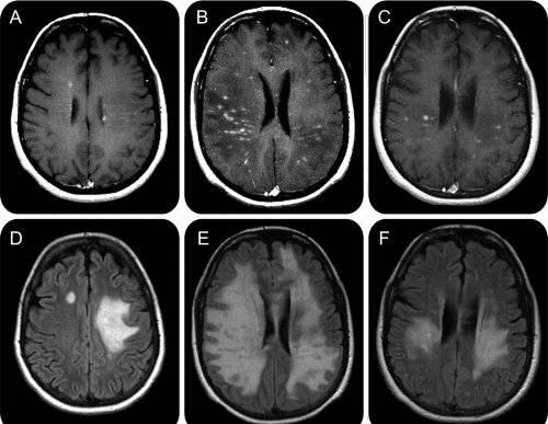 dureri articulare cu scleroză multiplă)