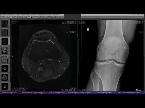 Scufundare unguent articular Geluri și unguente reumatism si osteocondroza de
