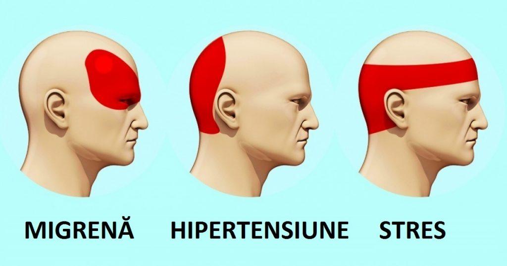 dureri de cap)
