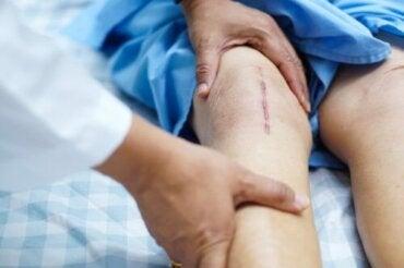 dureri de genunchi după artroplastie)