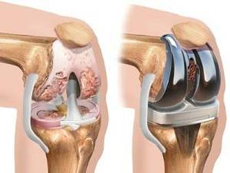 dureri de proteză la șold artroza articulațiilor genunchiului cum se vindecă