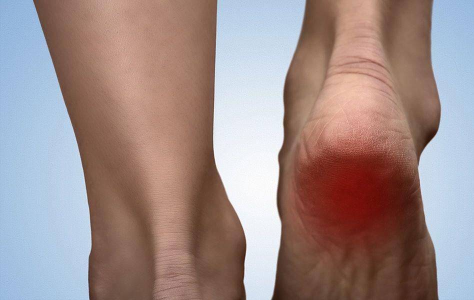 dureri la nivelul gleznei și la călcâie tratament eficient pentru artroza gleznei