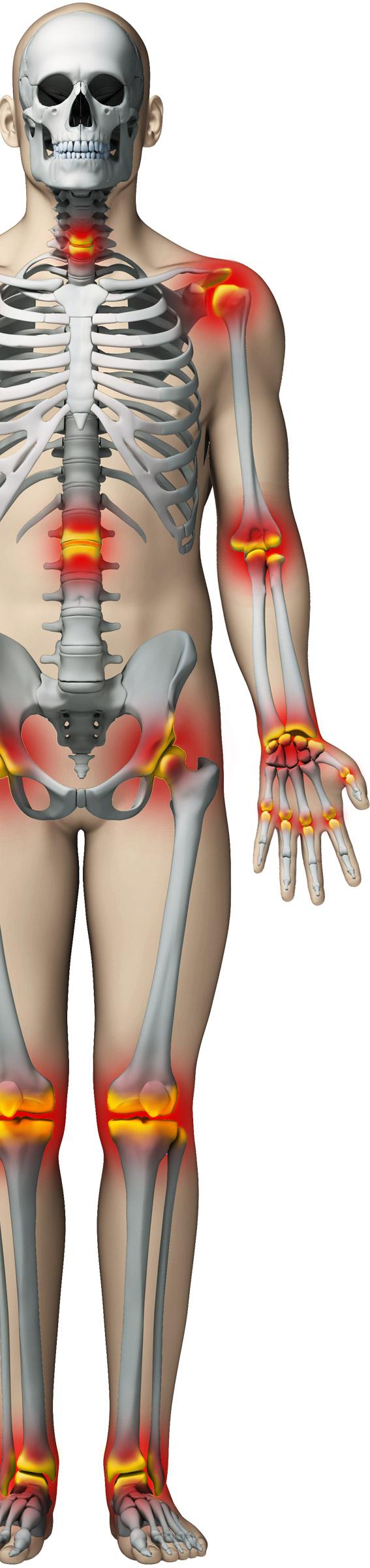 produse provocatoare de dureri articulare
