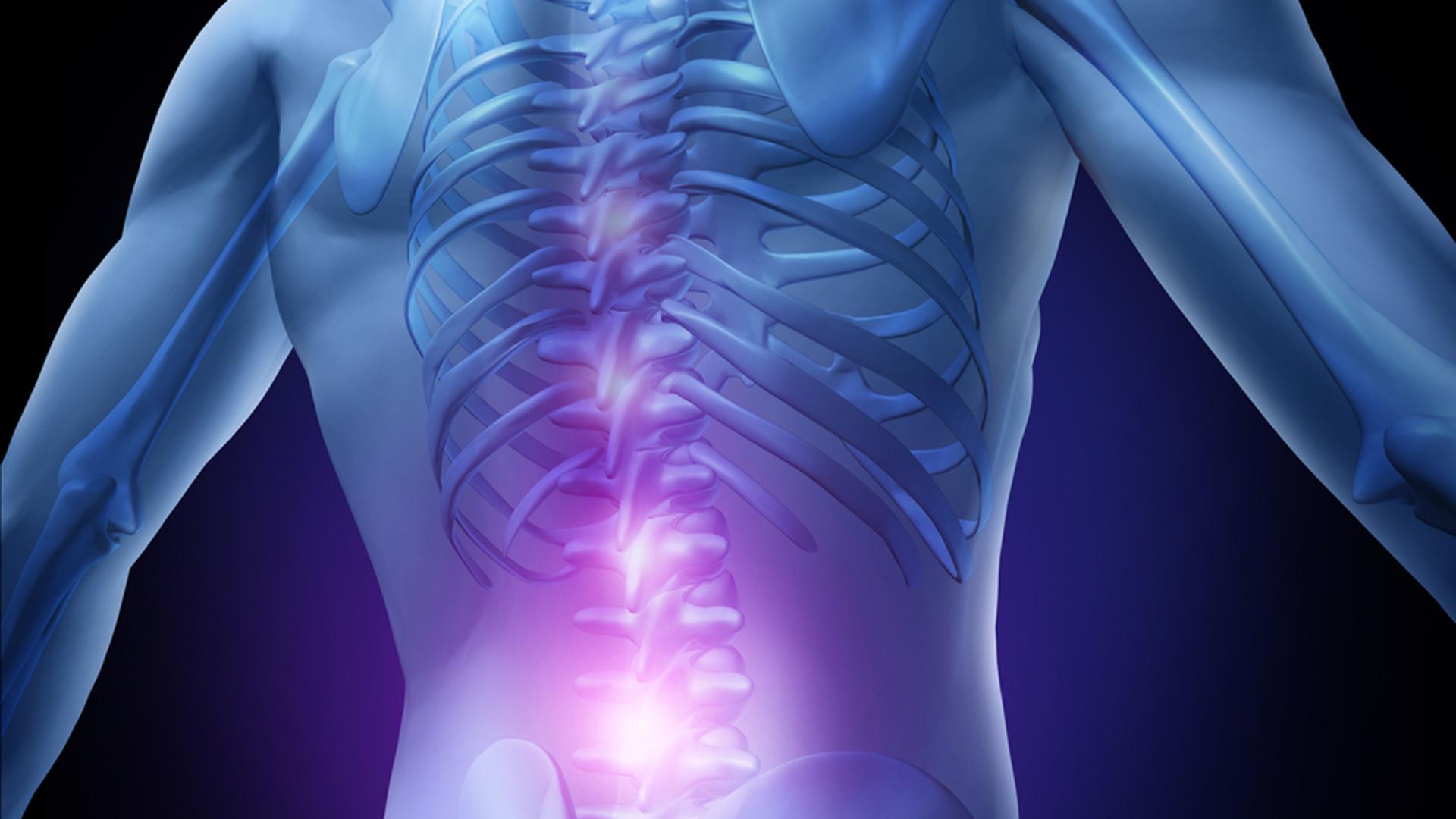 artroza simptomelor și tratamentului din spate)
