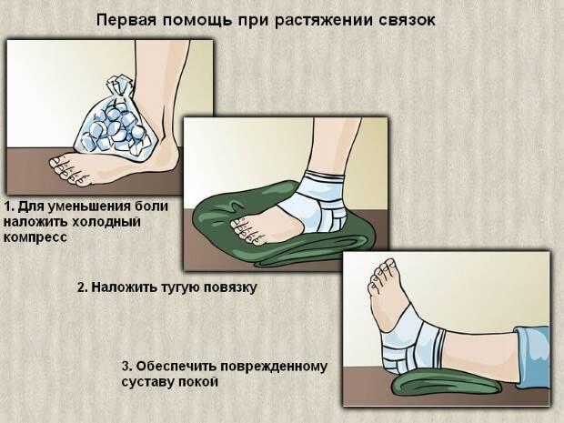 deteriorarea sindrozei tibiofibulare a articulației gleznei)