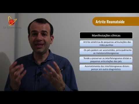 deformarea artrozei arcadelor