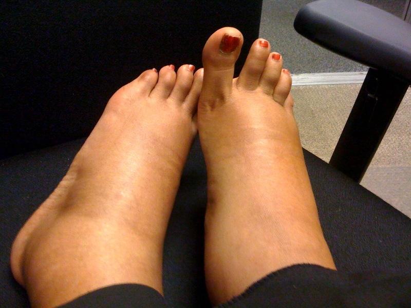 umflarea picioarelor sub articulație displazie de boală a țesutului conjunctiv